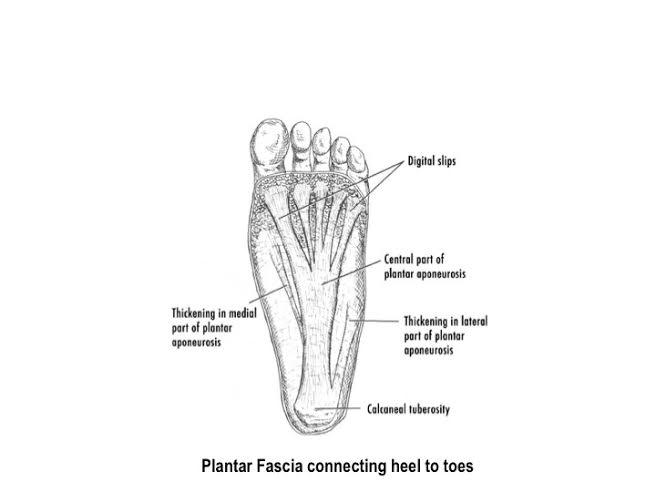 Plantar Fasciitis By Dr Kathleen Thompson Frost Magazine